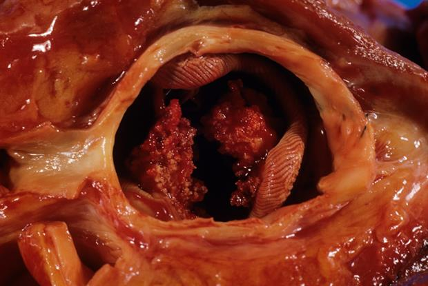 Clinical review of infective endocarditis: diagnosis and ...