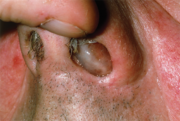 Pictorial Case Study Nasal Polyps Gponline