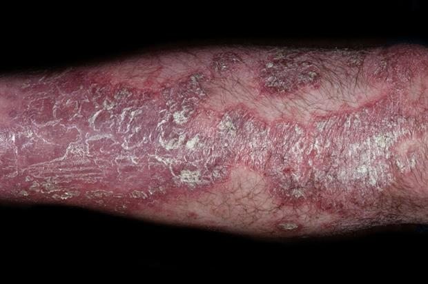 Several clinical phenotypes of psoriasis are recognised, with chronic plaque (psoriasis vulgaris) accounting for 90  of cases 2