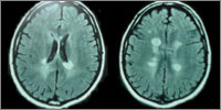 Nerve demyelination (white) in MS