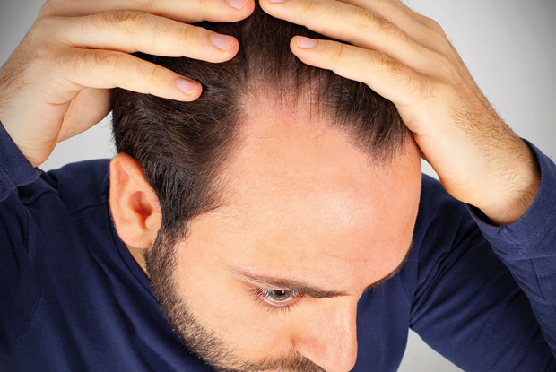 Male alopecia may be associated with raised cardiovascular risk