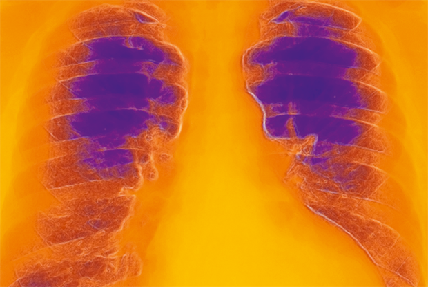 A chest X-ray is mandatory to rule out pulmonary causes of dyspnoea (SPL)