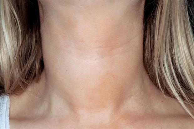 Goitre in Hashimoto's thyroiditis (SPL)