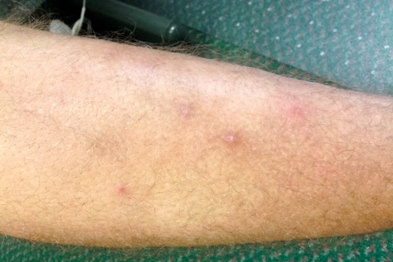 Tender nodules were appearing on the patient's lower legs