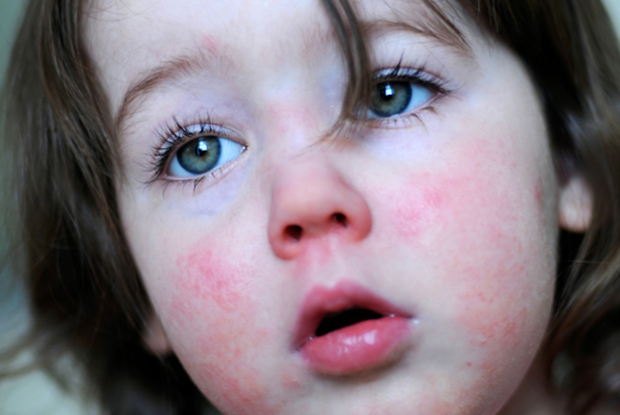 Scarlet fever cases have risen over the past three years (Photo: iStock)