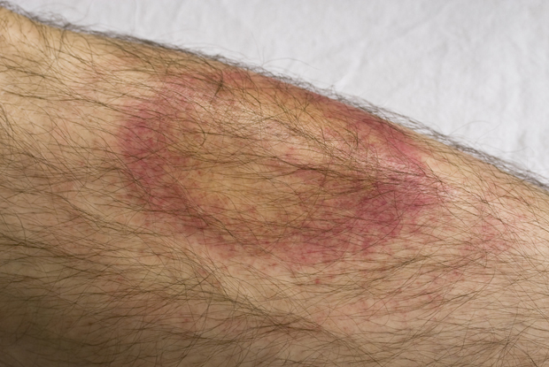 Bull's eye rash triggered by Lyme disease (Photo: iStock)