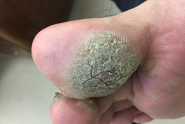 Plantar viral warts are typically caused by HPV 1 and 4