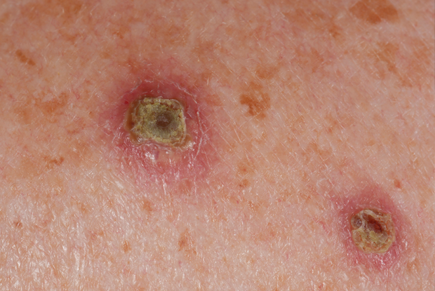 The rash developed into itchy red papules and friable pustules