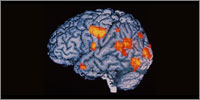 PET scan showing the areas of the brain active during hallucination