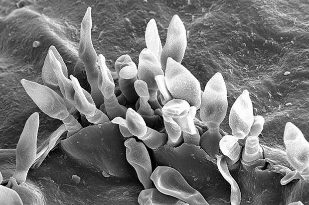 Spores of Venturia inaequalis, the cause of apple scab disease - image: Charles Krause