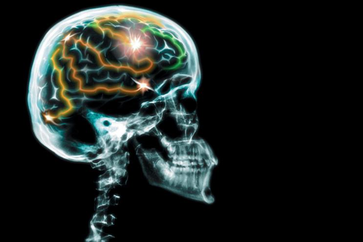 Why shouldn't we use pharmaceutical brain-enhancers
