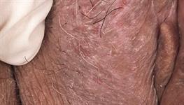 eczema on vagina Photos of