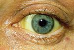 Red flag symptoms: Jaundice