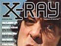 X-Ray: foo-fightin' debut