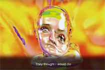 How one beautiful ad tells stroke survivors' stories
