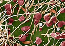 "Study shedding light on rose rosette virus ""could aid control efforts"""