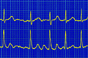 Apixaban 'better than aspirin' in atrial fibrillation