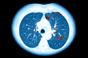 Further Phase III data for potential COPD treatment
