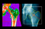 Protelos approved for osteoporosis in men