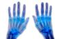 Rheumatoid arthritis antibody succeeds in late-stage trial