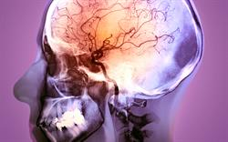Anticoagulants linked to increased risk of stroke and haemorrhage in CKD patients