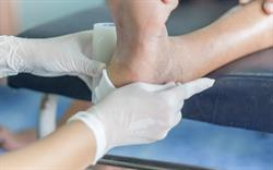 New antibiotic guidance for diabetic foot infection