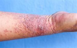 Dupilumab: first biologic for moderate-to-severe atopic dermatitis