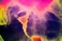New endometriosis drug 'safer' than standard therapy