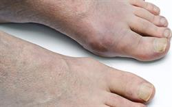 Avoid gout drug in patients with major cardiovascular conditions, says MHRA