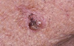 Skin cancer warning for actinic keratosis treatment