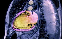 NICE updates chronic heart failure guideline