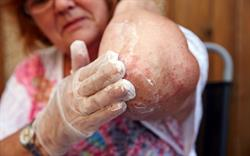 Prescribers alerted to topical steroid withdrawal reactions
