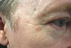 Malignancy: Management of basal cell carcinoma
