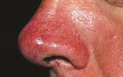 Case reports: Worsening facial redness with flushing episodes