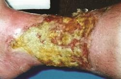 Best practice in managing infected leg ulcers