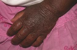 MIMS Dermatology Guide to Eczema: 2 CPD credits: Complications in patients with eczema