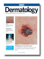 Editorial: Update to the NICE guidance on management of psoriasis
