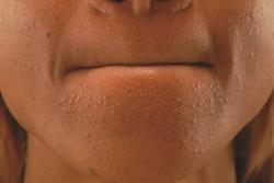 Managing acne vulgaris in primary care