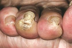 Nails: Diagnosis and therapy in fungal nail infection