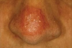 Case Report: Actinic keratosis following sunbed use