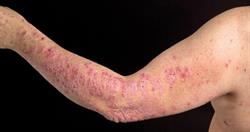 Expert opinion: biologics in the treatment of psoriasis