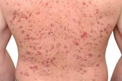 Case reports: Testosterone-induced acne