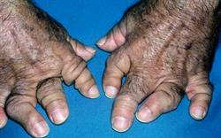 Diagnostic symptoms of psoriatic arthritis