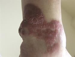 Pictorial case studies: Four presentations of skin conditions