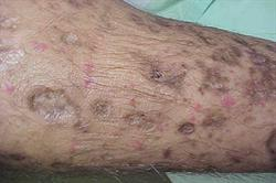 1.5 CPD credits: Non-infective skin disorders in HIV patients