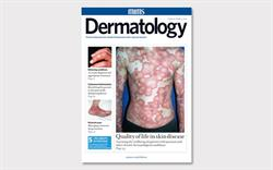 Editorial: Promoting wellbeing in patients with skin disease