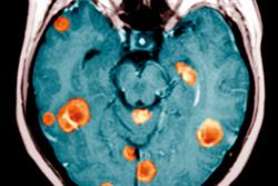 Management of neurological metastases