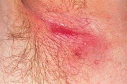 Case study - Hidradenitis suppurativa