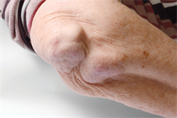 Timely diagnosis of rheumatoid arthritis