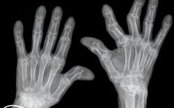 Rheumatoid arthritis: clinical review